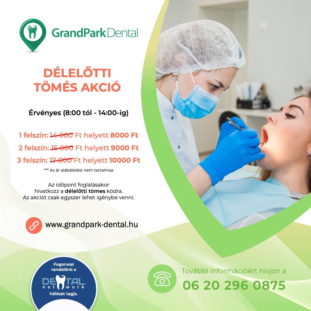 Grand Park Dental Fogászat - Tömés Akció